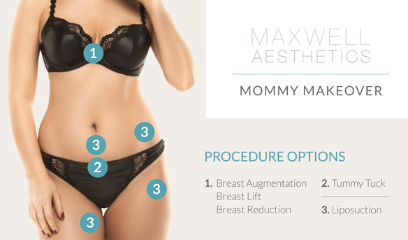 Learn more about the elements that can go into a Mommy Makeover at Nashville's Maxwell Aesthetics.