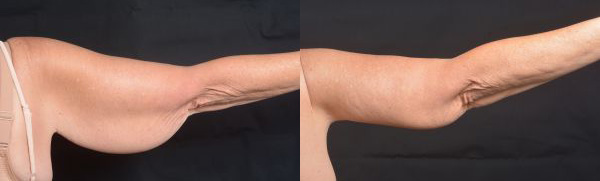 Arm Lift - Before  and After