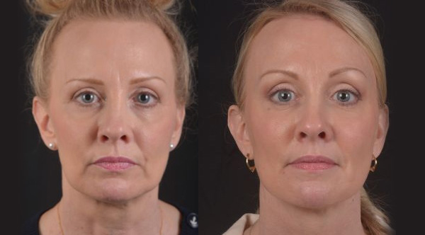 Blepharoplasty - Before and After