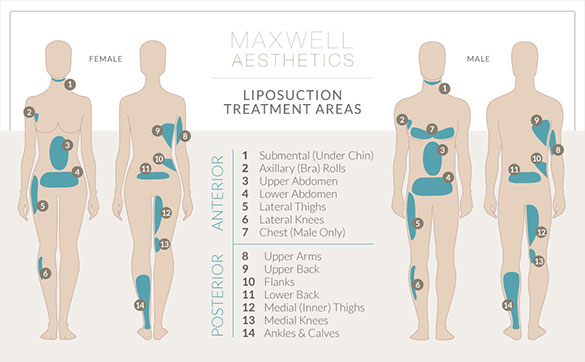 Maxwell Aesthetics offers posterior and anterior liposuction treatments in Nashville for both men and women who want a more toned body.