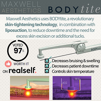 Learn more about BODYtite for fat reduction at Nashville's Maxwell Aesthetics