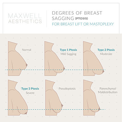 See the range of degrees of sagging that can be addressed with a breast lift at Nashville's Maxwell Aesthetics.