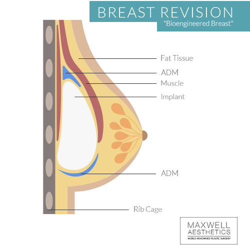 Dr. Jacob Ungers bioengineered breast revision is a two-stage process involving acellular dermal matrix, and implant, and fat transfer for successful breast revision in Nashville.