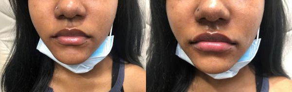 Restylane - Before and After