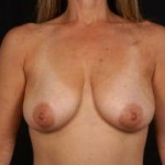 Aesthetic Breast Revision - Case #38 Before