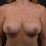Aesthetic Breast Revision - Case #38 After