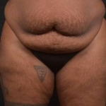 Abdominoplasty - Case #45 Before