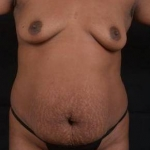 Abdominoplasty - Case #44 Before