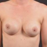 Breast Revision - Case #37 Before