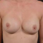Breast Revision - Case #37 After