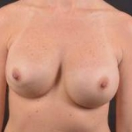 Breast Revision - Case #35 Before