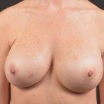 Breast Revision - Case #35 After