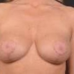 Aesthetic Breast Revision - Case #34 Before