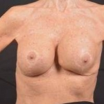 Aesthetic Breast Revision - Case #31 Before