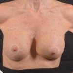 Aesthetic Breast Revision - Case #31 After