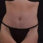 Abdominoplasty - Case #43 After