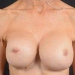 Aesthetic Breast Revision - Case #30a Before
