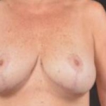 Breast Revision - Case #33 Before