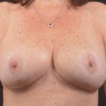 Breast Revision - Case #33 After