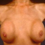 Aesthetic Breast Revision - Case #1 Before