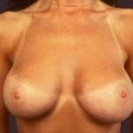 Aesthetic Breast Revision - Case #1 After