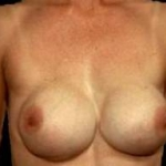Aesthetic Breast Revision - Case #3 Before