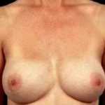 Aesthetic Breast Revision - Case #3 After