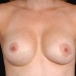 Aesthetic Breast Revision - Case #4 Before