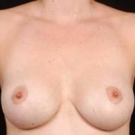 Aesthetic Breast Revision - Case #4 After