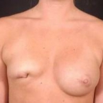 Aesthetic Breast Revision - Case #5 Before