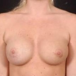 Aesthetic Breast Revision - Case #5 After
