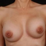 Aesthetic Breast Revision - Case #6 Before