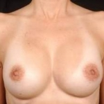 Aesthetic Breast Revision - Case #6 After