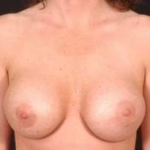 Aesthetic Breast Revision - Case #7 Before