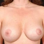 Aesthetic Breast Revision - Case #7 After
