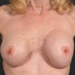 Aesthetic Breast Revision - Case #8 Before