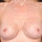 Aesthetic Breast Revision - Case #8 After