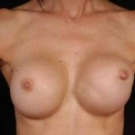 Aesthetic Breast Revision - Case #9 Before