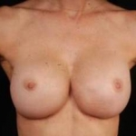 Aesthetic Breast Revision - Case #9 After
