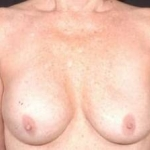 Aesthetic Breast Revision - Case #10 Before