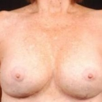 Aesthetic Breast Revision - Case #10 After