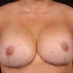 Aesthetic Breast Revision - Case #11 After