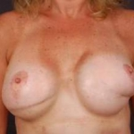 Aesthetic Breast Revision - Case #12a Before