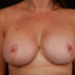 Aesthetic Breast Revision - Case #12a After