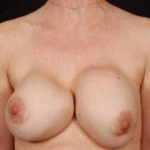 Aesthetic Breast Revision - Case #13 Before