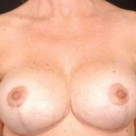Aesthetic Breast Revision - Case #13 After
