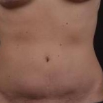 Abdominoplasty - Case #40 Before