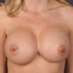 Aesthetic Breast Revision - Case #14 Before