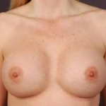 Aesthetic Breast Revision - Case #14 After