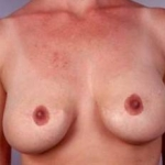 Aesthetic Breast Revision - Case #15 Before
